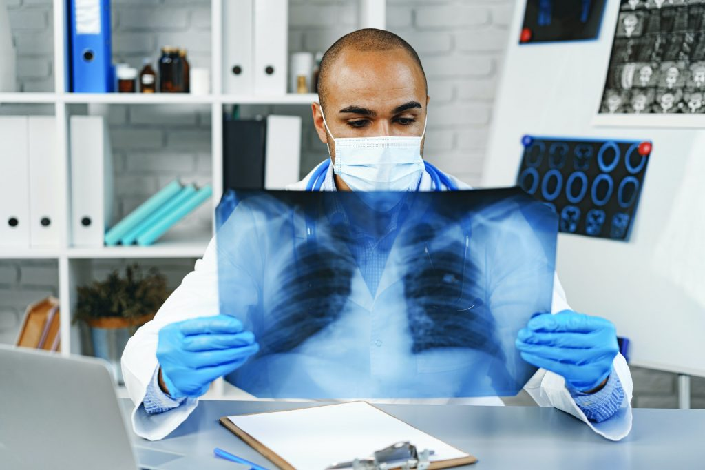 Male doctor examines an x-ray of lungs in hospital